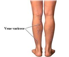 come si presentano le vene varicose